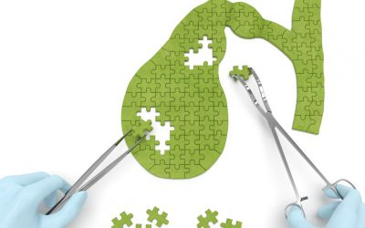 How an Integrative Approach Saved My Gallbladder